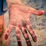 hand, fingers, skin